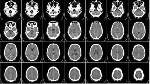 Salute, una tossina ambientale la causa dell'Alzheimer?