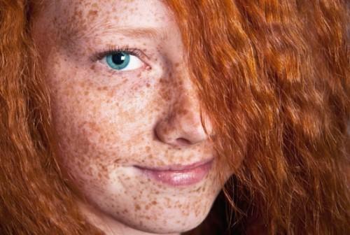 Il trattamento di pigmentary nota su una faccia di crema