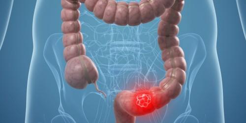 Cancro del colon retto, meno della metà degli italiani fa prevenzione