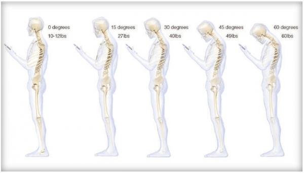 Lo smartphone provoca cervicale acuta, alzate la testa!