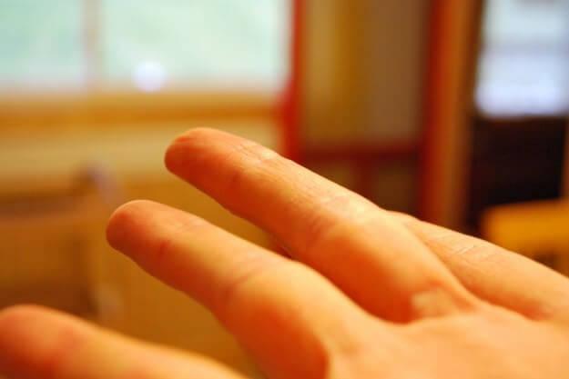 Far schioccare le dita della mano può portare ad una riduzione del senso di dolore