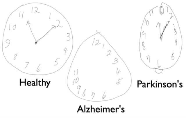 diagnosi precoce parkinson alzheimer 1