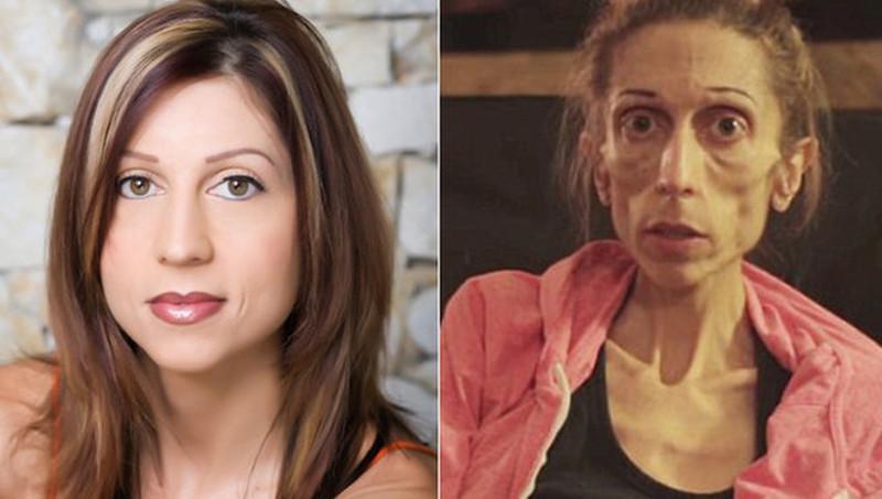 12 fotos del antes y después de la anorexia  Recreo Viral