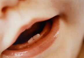 bimba due denti